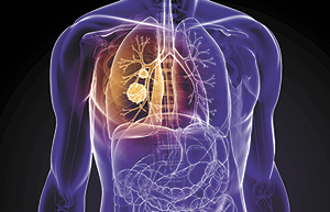 RUTHERFORD REGIONAL NOW OFFERING LOW-DOSE LUNG CANCER SCREENINGS